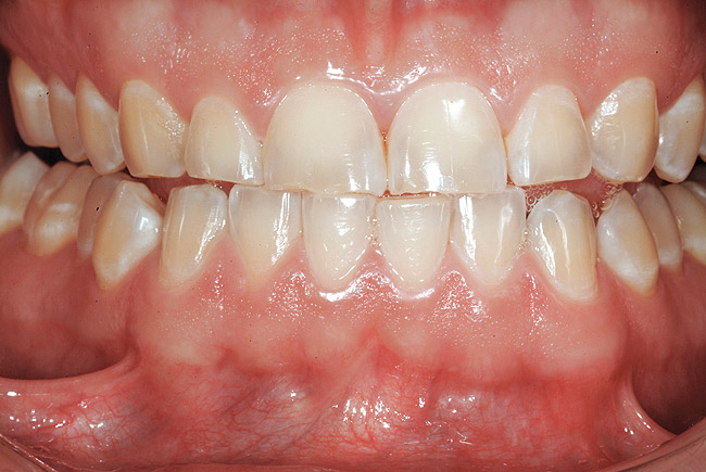 Figure 13 Adolescent triad: A 16-year-old with pathologic wear on incisors