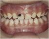 Fig 5. Use of 38% SDF to arrest coronal caries in primary teeth of a young child. The arrested carious lesion had a hard, blackened, and impermeable layer.