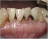 Fig 6. Use of 38% SDF to arrest root caries in permanent teeth of an elderly patient: the arrested root carious lesions were hard to probe.