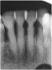 Fig 7. Use of 38% SDF to arrest root caries in permanent teeth of an elderly patient: the lower incisors were responsive to electric pulp testing with no radiographic pathology.