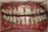 Fig 8. Use of 38% SDF to arrest rampant caries in a young teenager: pre-treatment intraoral frontal view of rampant caries. (image from Chu, et al, 2014, ref 36 [reprinted with approval])