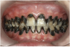 Fig 9. Use of 38% SDF to arrest rampant caries in a young teenager: frontal view of arrested caries after consecutive application of SDF for 3 weeks. (image from Chu, et al, 2014, ref 36 [reprinted with approval])