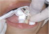 Darkened teeth after silver diamine fluoride treatment. Photos courtesy of Dr. Travis Nelson.