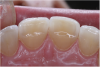 (4.) CR/MIP discrepancies are very common and are major factors leading to excessive tooth-to-tooth abrasion.