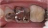 "(7.) ""Ditching"" from GERD around existing restorations may be noted upon examination."