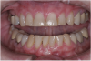 (11.) A patient presented with advanced generalized wear of her anterior teeth, and was displeased with their overall appearance because of their color and wear.