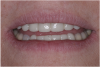 (19.) The provisional restorations show the vertical and horizontal changes in the incisal edge position.