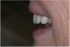 (21.) The provisional restorations show the vertical and horizontal changes in the incisal edge position.