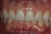 Fig 3. At 5 months, gingival health is indicated by the absence of inflammation and plaque. Smooth, dull facial surface of incisors is indicative of mild acid erosion.