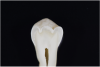 Fig 7. ICDAS code 0: Sectioned tooth confirms stain not indicative of carious penetration of fissure.