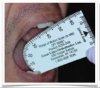 Fig 3. A maximum unassisted mouth opening of 45 to 60 mm.